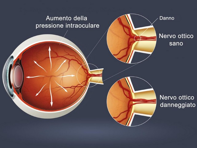 http://www.realtasannita.it/bt_files/newspaperFiles/glaucoma.jpg
